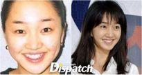 Sao Hàn 'lên đời' nhờ chỉnh lại hàm răng 'ngay hàng thẳng lối'