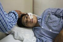 Truy tìm thanh niên giấu mặt ném đá vỡ xương cảnh sát cơ động