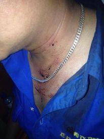 Tranh giành khách, một tài xế bị đánh phải nhập viện