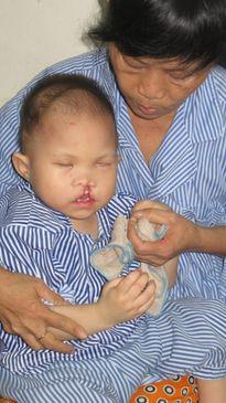 Hành trình tìm lại nụ cười của em bé 2 tuổi bị bỏ rơi