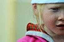 Cuộc sống của cô bé Tây Nguyên bị chứng bạch tạng