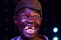 Anh chàng xấu trai nhất Zimbabwe vẫn bị chê… đẹp trai
