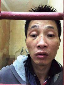 Bị bắt quả tang, rút dao tấn công cảnh sát
