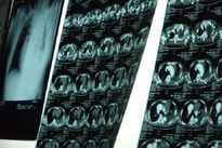 Cứu sống nam bệnh nhân bị phình to động mạch chủ