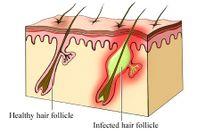 Thuốc trị bệnh viêm nang lông