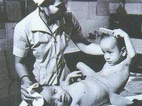 Chuyện chưa kể về ca mổ lịch sử tách cặp song sinh Việt - Đức Giải mã lý do ngày càng có nhiều người bị ung thư
