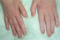 Cách để da tay không bị khô, nút nẻ trong mùa đông