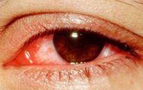 Bài thuốc trị đau mắt do dị ứng