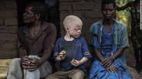 Nỗi sợ bị truy sát của người bạch tạng ở Malawi