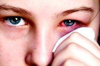 Cảnh báo tự ý chữa đau mắt đỏ: Rước di chứng nặng nề