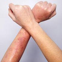 Loạt bệnh ngoài da thường gặp vào mùa hè và cách xử lý