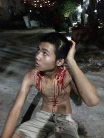 Bị nhóm côn đồ hành hung, nam thiếu niên bị trọng thương nhập viện