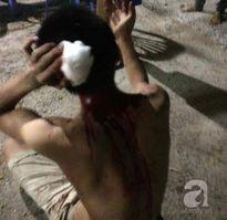 Hà Nội: Phẫn nộ thiếu niên mắc bệnh tâm thần bị nhóm côn đồ truy sát trọng thương