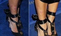 Kim mặc sexy đi event, lộ chân loét đỏ vì bệnh vảy nến