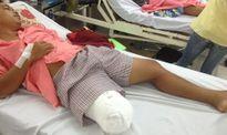 Vụ nam thanh niên bị cưa cụt chân: Bộ Y tế yêu cầu xác minh vụ việc để xử lý