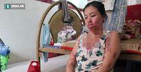 'Người mẹ ma' ở TP HCM: 'Ước gì tôi biết vì sao mình bị tạt axit'