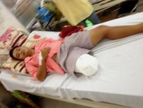 Bộ y tế yêu cầu làm rõ vụ bệnh nhân bị cưa chân