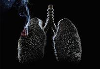 Thuốc lá sẽ 'giết chết' 1 tỷ người trong thế kỷ này