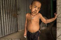 Cuộc đời bất hạnh của cậu bé 4 tuổi có gương mặt của ông lão 80