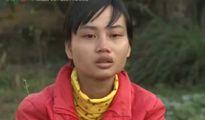 Cô gái nghèo lột xác sau tai nạn khủng khiếp nhờ phẫu thuật thẩm mỹ