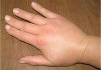 Nhận biết dấu hiệu bệnh ung thư qua bàn tay
