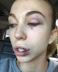 Thí sinh hoa hậu bị 4 người phụ nữ đánh hội đồng dã man