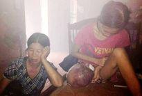 Hết tiền, cô gái nghèo cắn răng chịu đau với khối u không được chữa trị