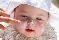 Dùng thuốc trị chàm sữa cho trẻ, cần lưu ý gì?