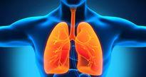 Nỗi lo tràn khí màng phổi