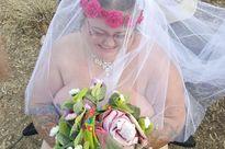 Kỳ lạ: Cô gái bị bệnh vi khuẩn ăn thịt người tỉnh dậy làm đám cưới 'nude'