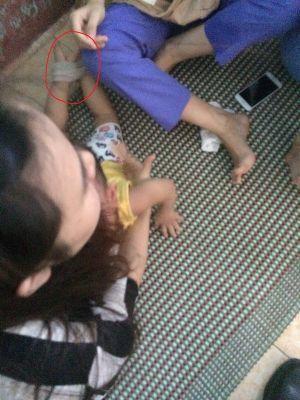 Vụ bảo mẫu nhét giẻ trói chân tay: Cháu bé bị sốt, sợ hãi và hoảng loạn