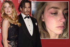 Johnny Depp bị tố thô bạo với người can ngăn anh đánh vợ