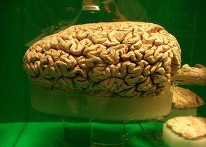 6 sai lầm về não bộ chúng ta hay gặp