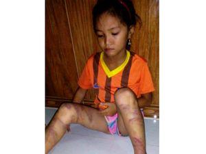 Bé gái 8 tuổi bị cha đẻ đánh dã man