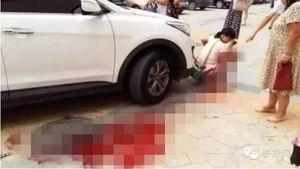 Người nhà mải xem điện thoại, cô bé 2 tuổi bị xe nghiền qua