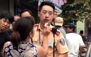 Nam thanh niên đấm CSGT gãy 2 răng cửa bị khởi tố