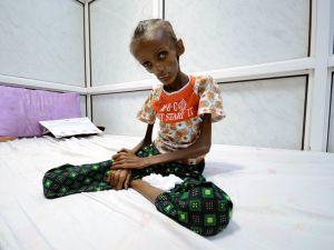 Ám ảnh thiếu nữ Yemen 18 tuổi bị suy dinh dưỡng nghiêm trọng