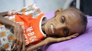 Hãy xem nạn đói đã làm gì với thiếu nữ 18 tuổi!