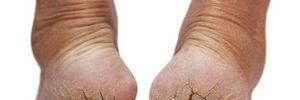 Thuốc nào trị nứt gót chân?