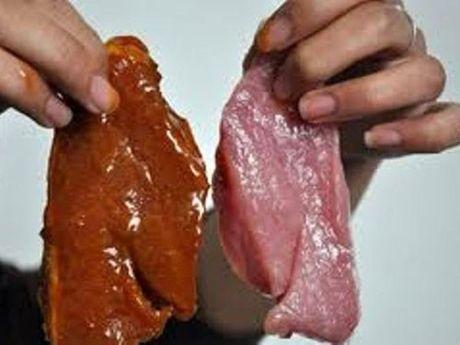 Việt Nam đứng thứ 2 thế giới vì có nhiều người mắc bệnh ung thư vì thức ăn bẩn