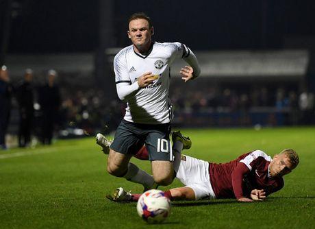 Rooney co nguy du bi tran gap Leicester - Anh 3
