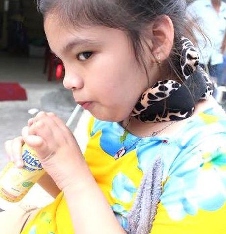 Chau noi vua Thanh Thai phuc hoi tot sau ghep te bao goc - Anh 1