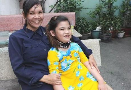 Chau noi vua Thanh Thai phuc hoi tot sau ghep te bao goc - Anh 2