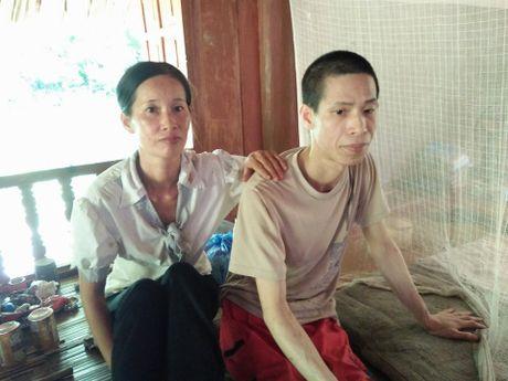 Chi gai hi sinh tuoi xuan cham em trai gap nan suot 20 nam - Anh 1