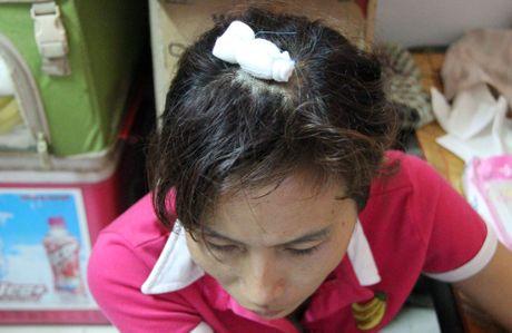 Nan nhan keo le: 'Toi mat ngu vi thong tin chan dat an xin' - Anh 1