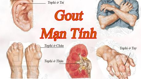 Noi am anh ve can benh gut - Anh 2