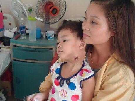 Con ung thu, bo me ban het ca ruong san cung khong co tien chua benh - Anh 1
