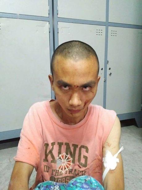 Nghi can gay an trong chua Buu Quang khong phai la tu si Phat giao - Anh 1