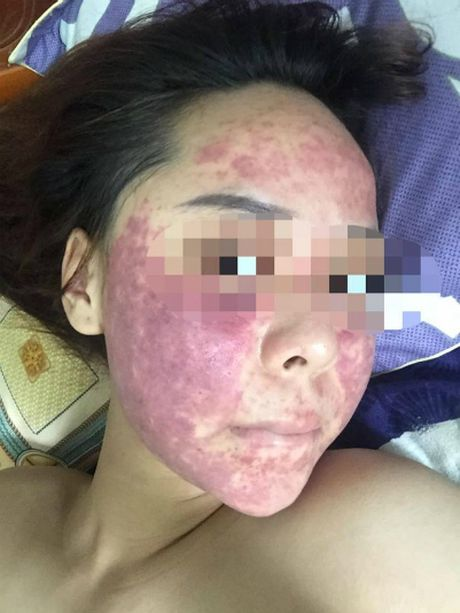 Kieu nu Ha Noi hong da mat sau khi boi lo kem chong sap cuoi tang - Anh 1