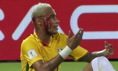 Chum anh: Neymar chay mau lenh lang trong chien thang '5 sao' cua Brazil - Anh 1